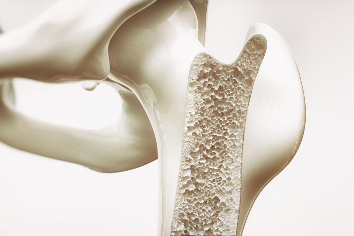3-D image of bone with osteoporosis