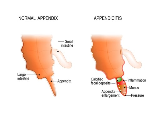 Appendicitis is the inflammation of the wall of the appendix caused by a blockage by a piece of stool, lymphatic tissue or even a tumor. However, sometimes a blockage and inflammation can occur for no reason at all.