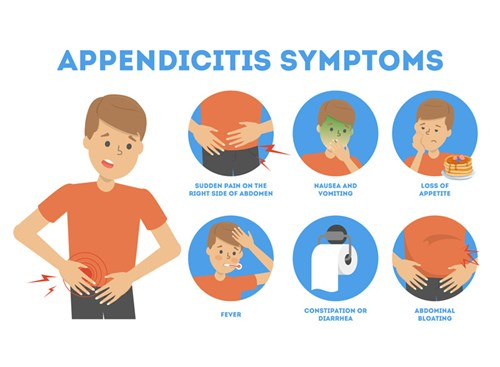 Signs of appendicitis can be mild at first, raning from loss of appetite and bloating to nausea and a fever. Over time, the pain in the abdomen will get so severe, nothing except surgery will relieve it.