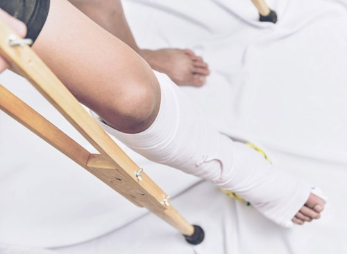 If left untreated, shin splints can progress to a stress fracture, an injury that has a longer and more-involved healing process that can require surgery.