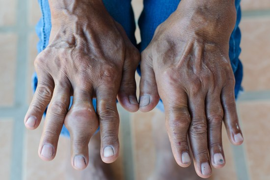 While gout most often appears in the joints of the big toe, the condition can affect other areas of the body, including the hands, knees, elbows and even ears.