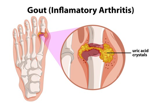 Gout is characterized by painful swelling in a single joint caused by excess levels of uric acid in the body and crystal deposits in the joints.