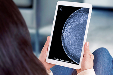 Woman looking at a tablet with breast tissue imaging.