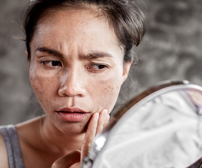 woman with melasma examining at skin in mirror