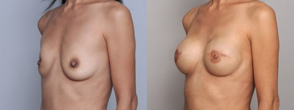 breast-before-after