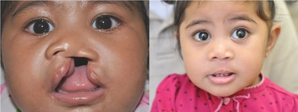 cleft-before-after-girl