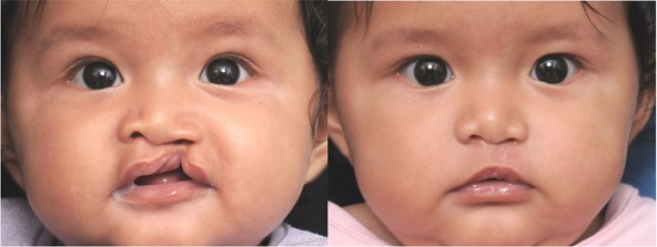 cleft-before-after-girl-2