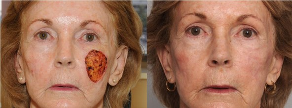 skin-cancer-before-after-cho