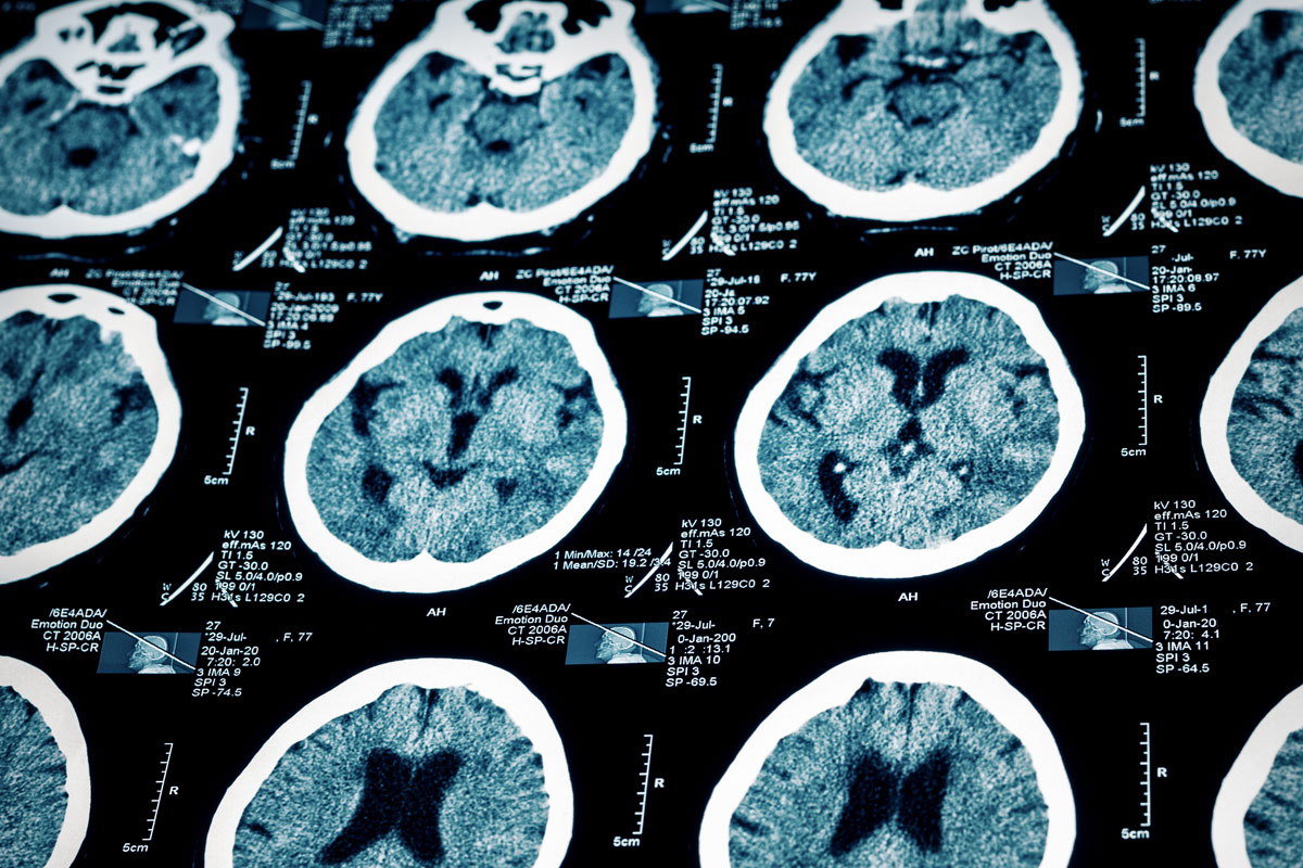 Alzheimer's FAQs: Answering Top-Of-Mind Questions about This Disease