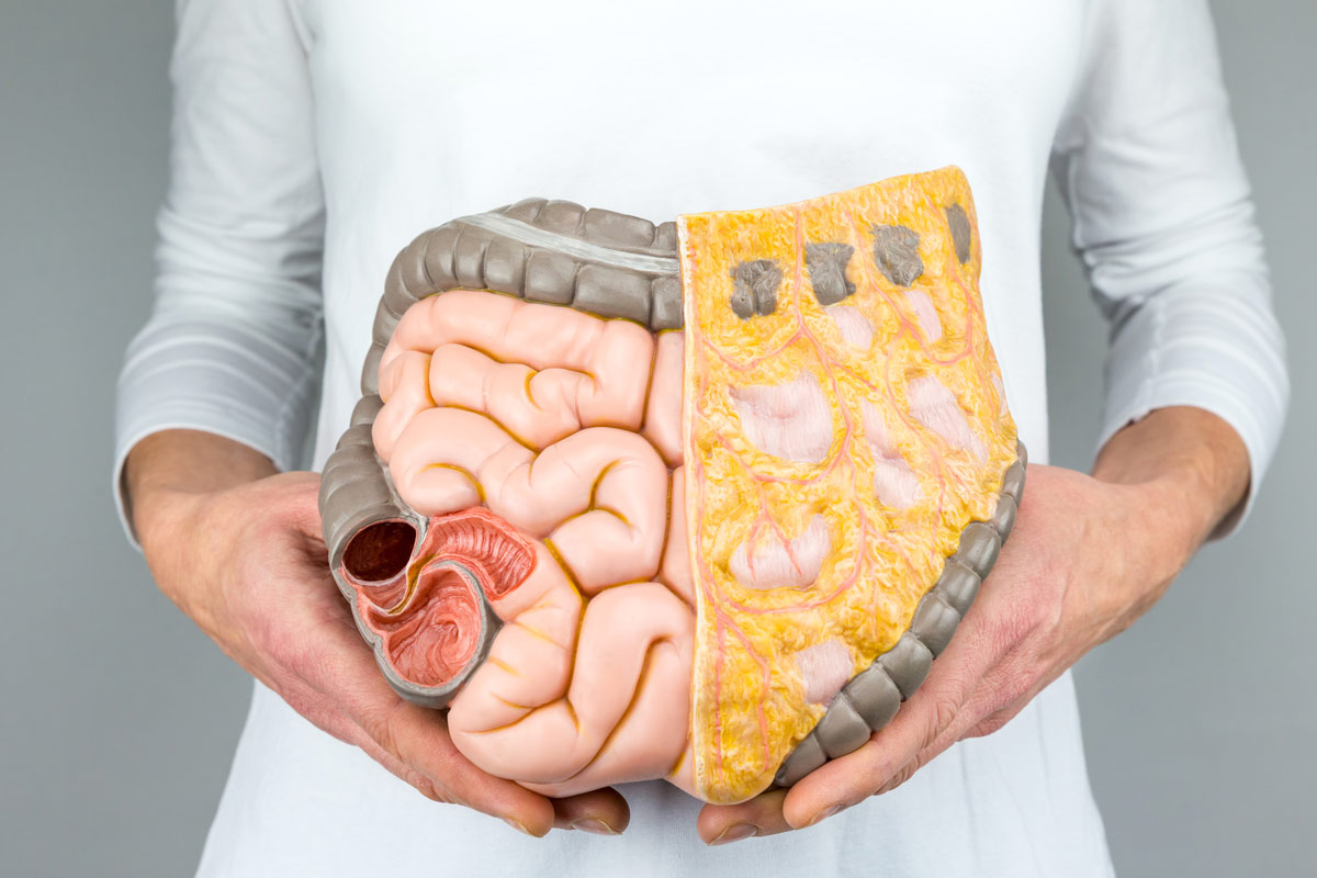 Colorectal Cancer Know The Signs Symptoms How To Nip It In The Bud