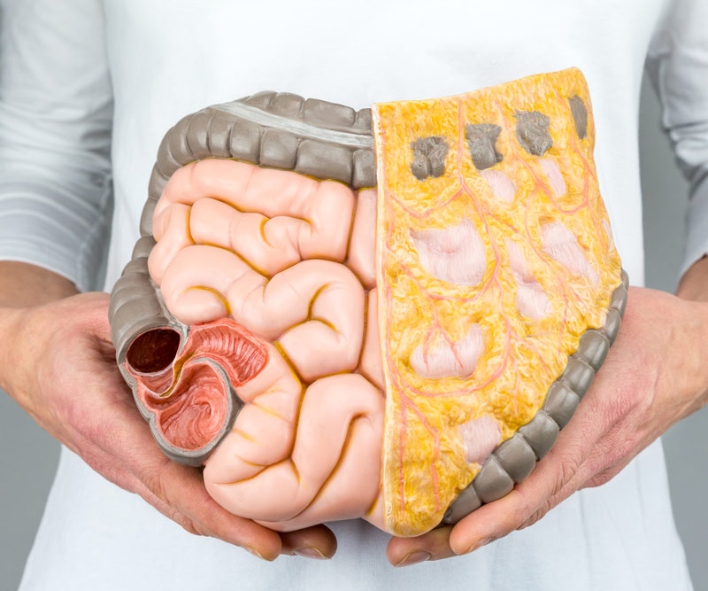 Doctor holding up a model of an intestinal tract