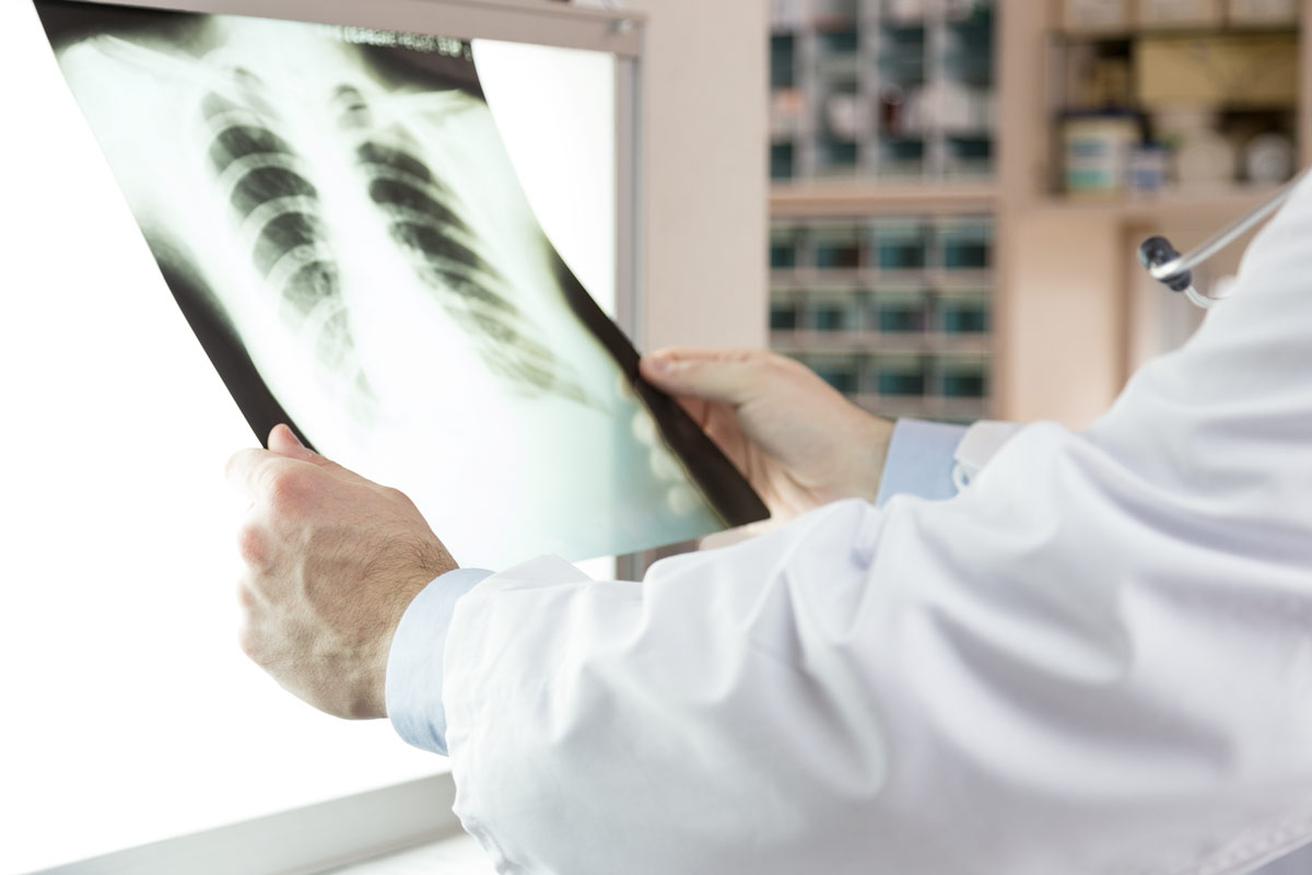 doctor examining x-ray scans of patient
