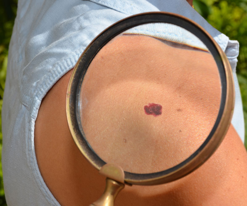 magnified spot of patient's skin cancer