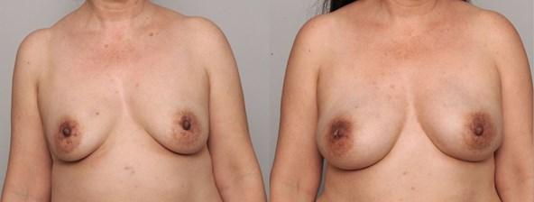 breast-reconstruction-bilateral-mastectomies