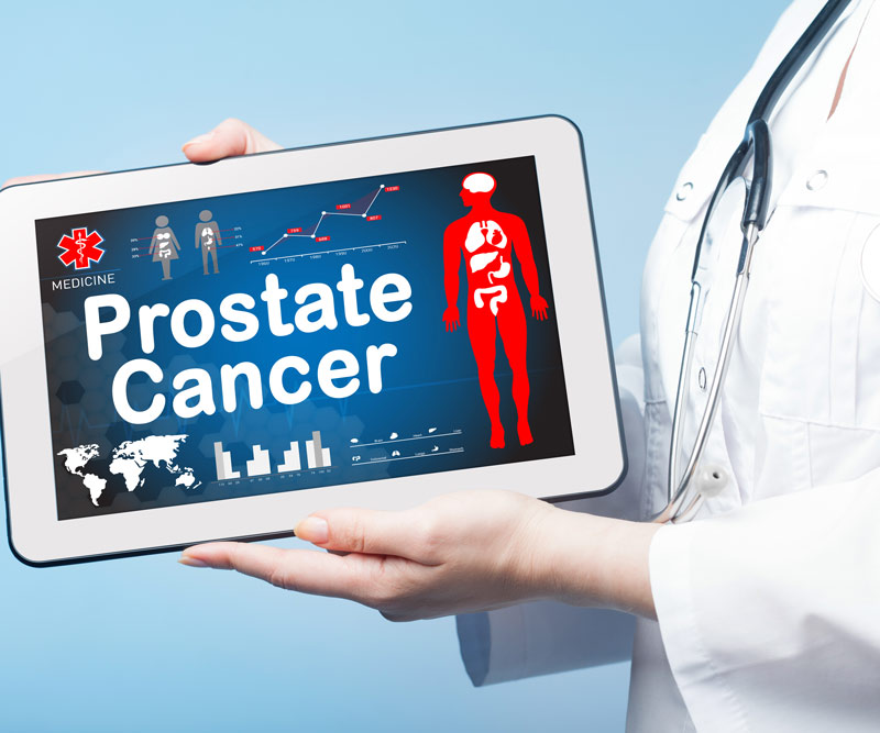 Doctor holding tablet that reads Prostate Cancer
