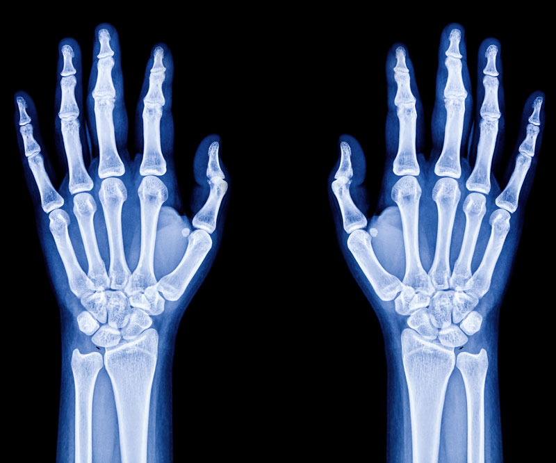 x-ray of two hands