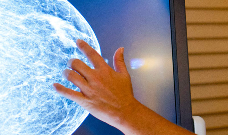Don't Be Dense When It Comes to Breast Health