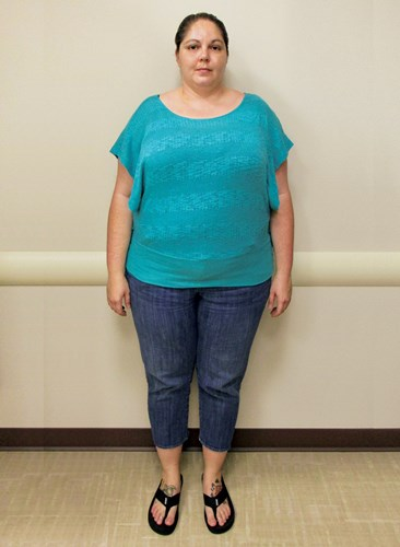 Stacey Norris before joining the Hawaii Pacific Health 360° Weight Management Center at Pali Momi