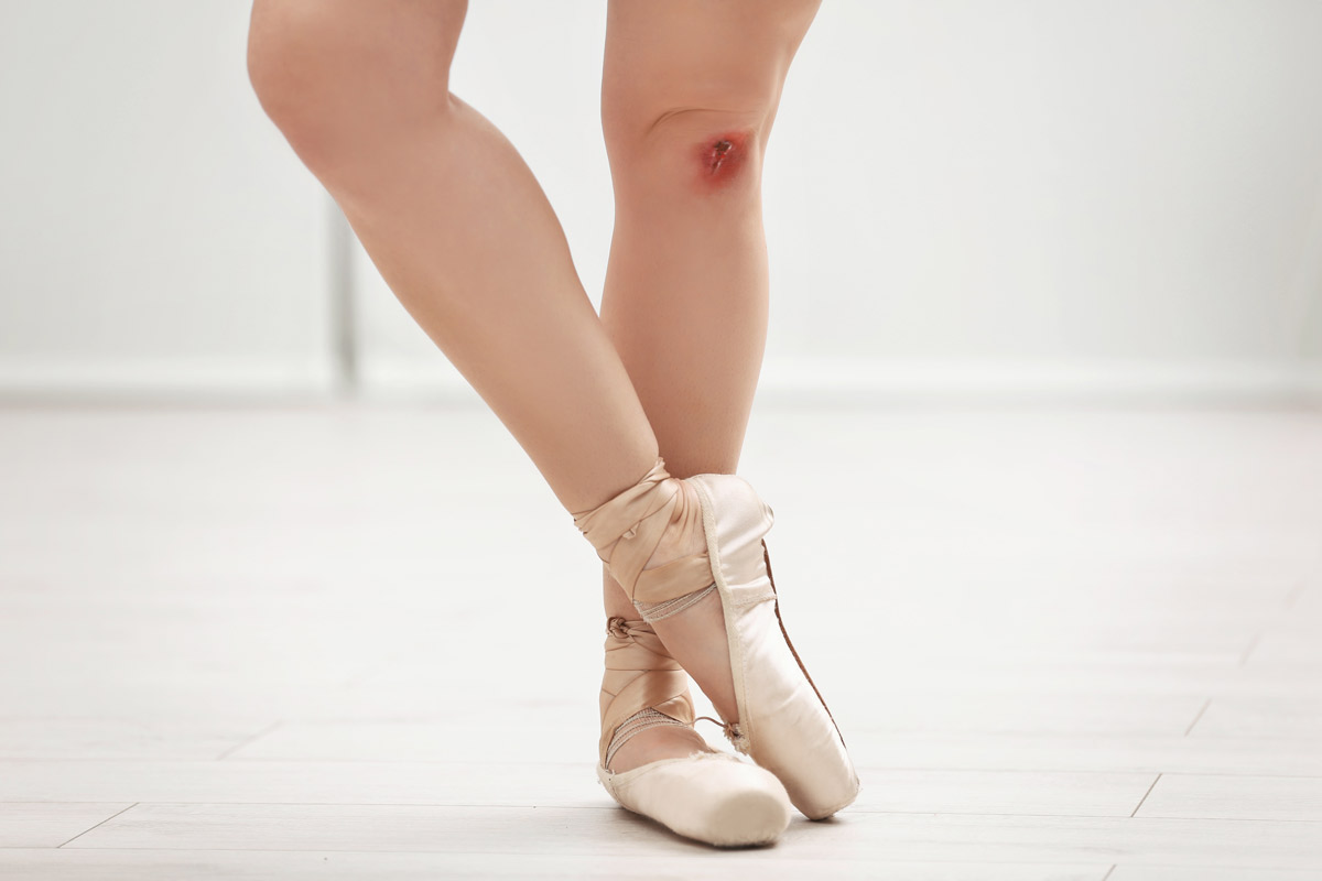 ballerina with a cut on her leg