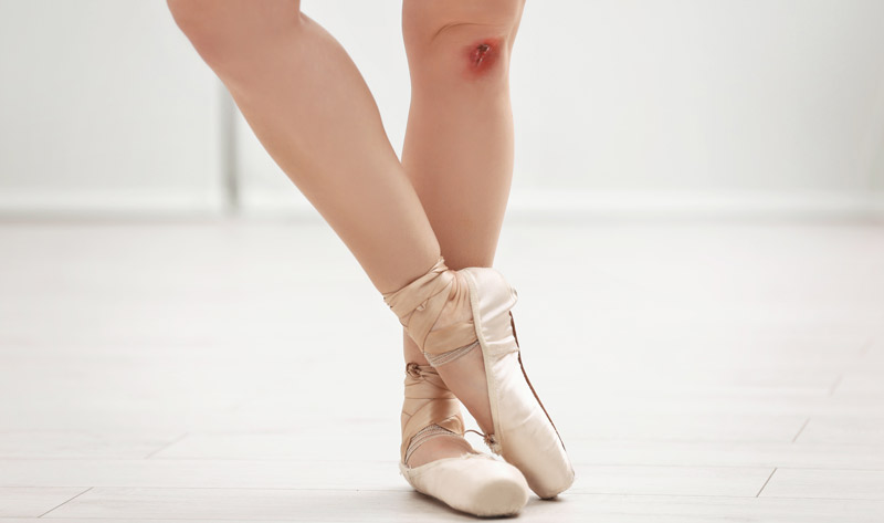 Injuries Among Dancers Present Unique Challenges