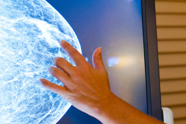 Doctor analyzing an x-ray image of a breast