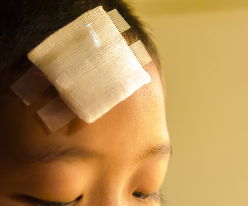 child with a bandage on their forehead