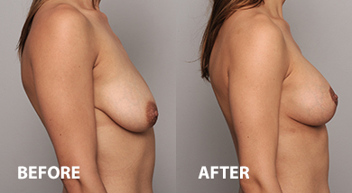 Breast augmentation patient before and after surgery