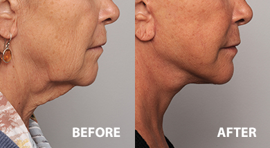 Lower face lift and neck lift patient before and after surgery