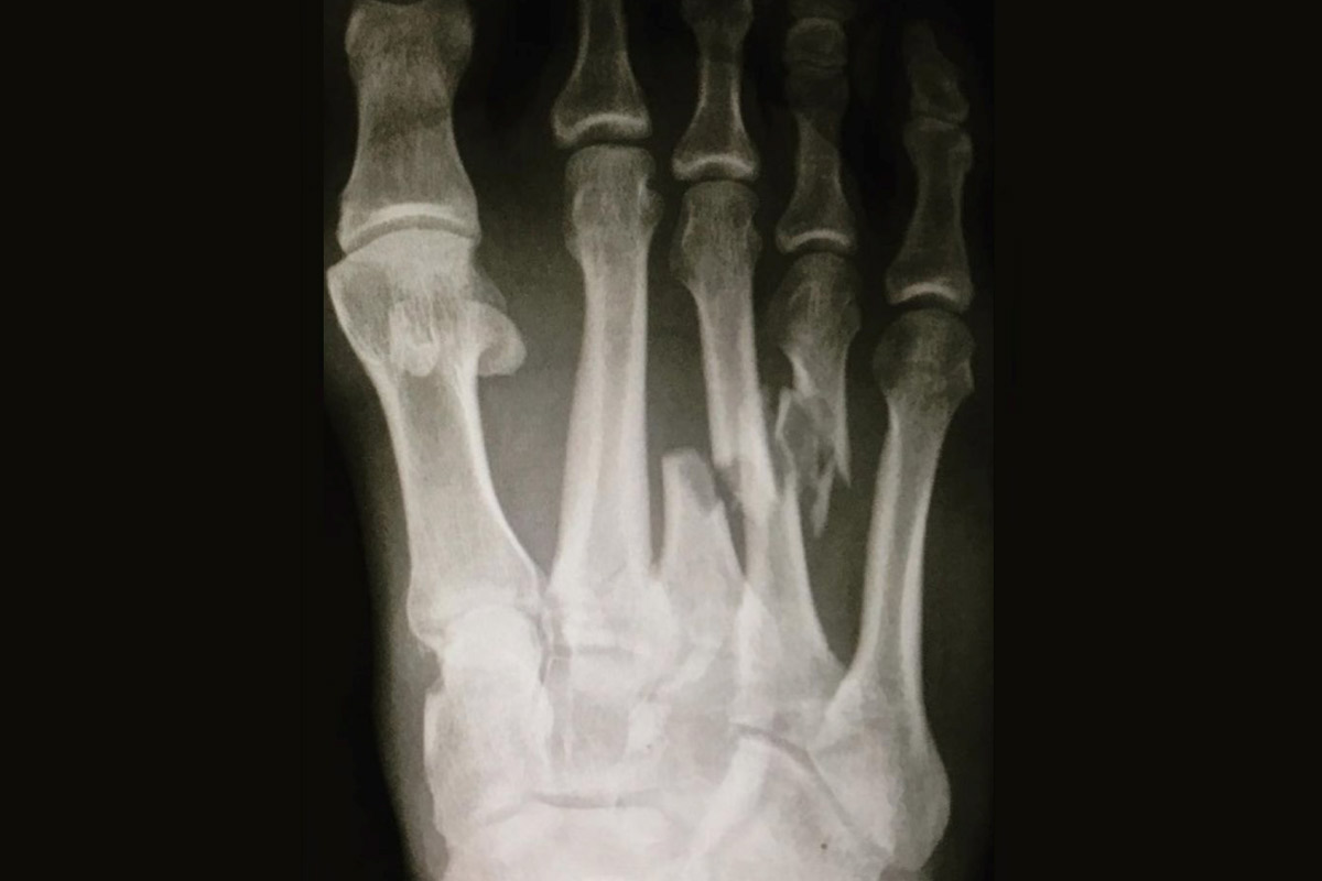 A radiographed photo of Kelly Slater's photo injury shows the broken metatarsal bones in the middle of the foot