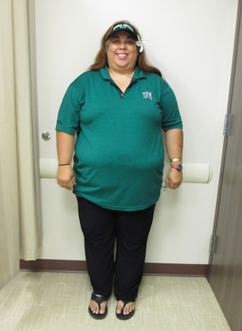 Shelly Kahalelehua-Kahapea before joining the Hawaii Pacific Health 360° Weight Management Center at Pali Momi.