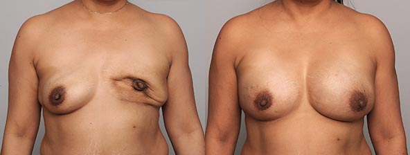 Revisionary-Breast-Reconstruction