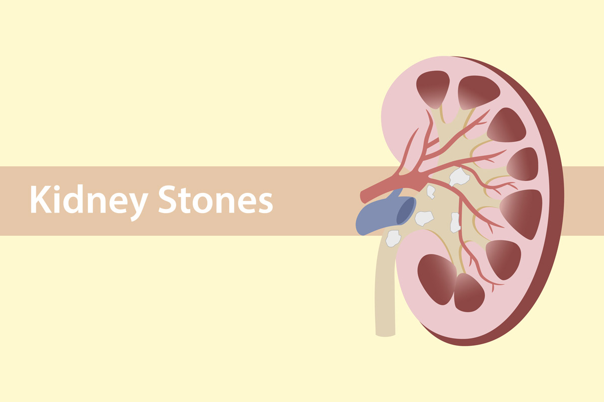A cross-sectional diagram of a kidney with kidney stones
